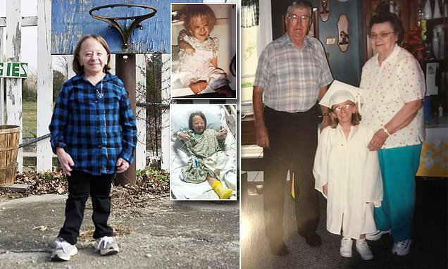 3ft 6in woman is the oldest living female with rare form of dwarfism