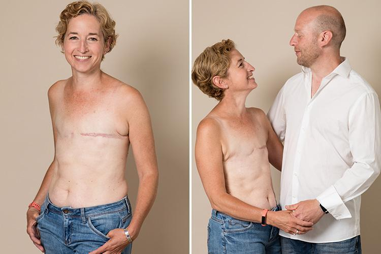 Brave mum poses topless to show mastectomy scars after beating breast cancer three times