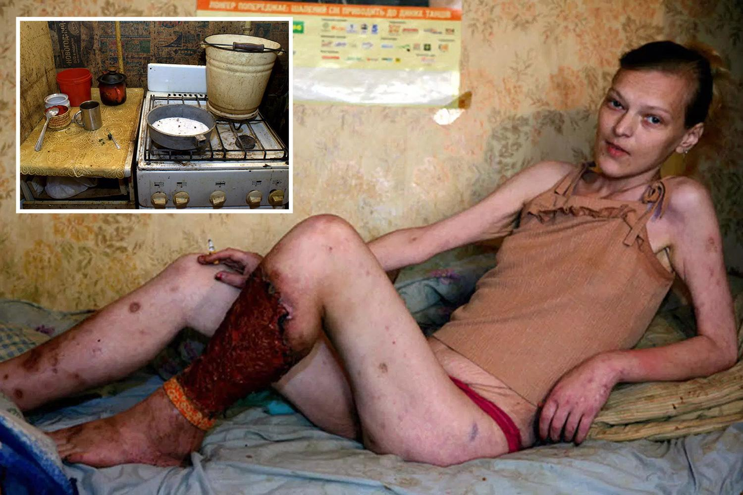 Flesh-eating drug Krokodil is sweeping the UK – leaving addicts with rancid rotting flesh, open pus-filled sores and scaly skin