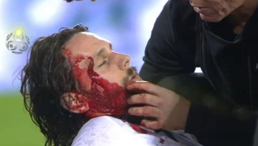 Neven Subotic rushed to hospital covered in blood after being knocked out in St Etienne's defeat to Bordeaux