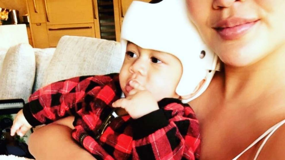 Babies in helmets come to support Chrissy Teigen's son as he sports his own