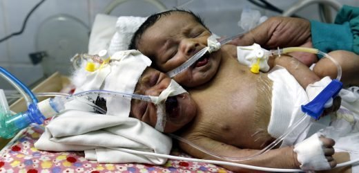 Father refuses to choose which conjoined twin lives