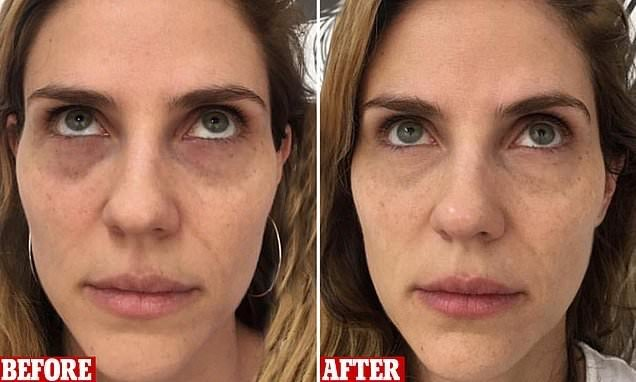 Women are getting their dark circles TATTOOED away