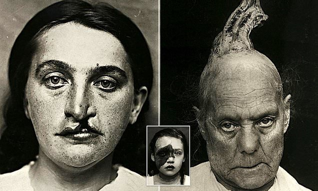 Haunting medical portraits reveal extreme symptoms suffered