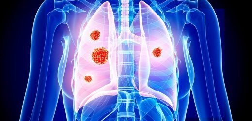 The 14 early warnings signs of cancer you should never ignore – from weight loss to coughing