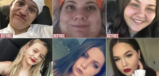 Women have shared their glow ups in a variety of before and afters