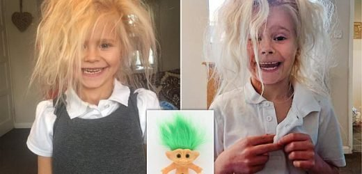 Mother says her daughter looks like a 'troll' thanks to rare condition