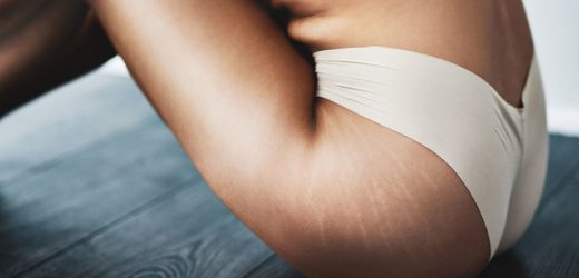 Everything You Need to Know About Laser Stretch Mark Removal