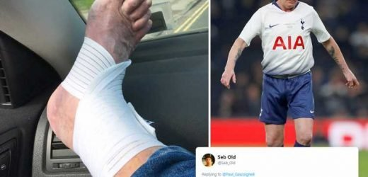 Paul Gascoigne vows to return after injury during Spurs Legends game… but fans are more worried about his manky toenails