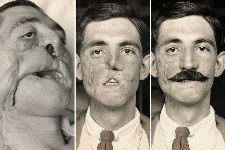 Graphic photos show World War One soldiers who underwent groundbreaking first plastic surgery procedures