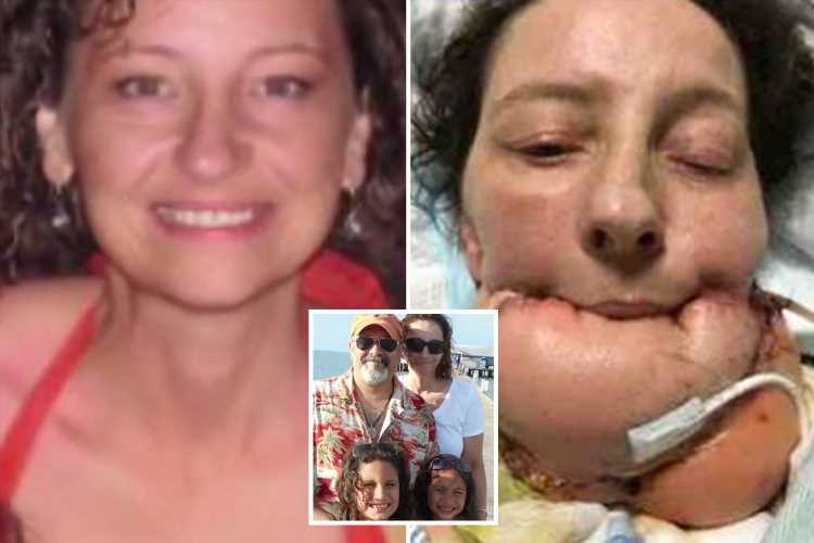 Brit mum who can't speak after being disfigured by THREE types of cancer says 'amazing' daughters can still understand her – The Sun