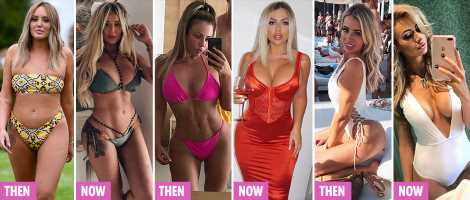 Holly Hagan, Charlotte Crosby and Olivia Attwood lead stars ditching huge implants for 'explants' – The Sun