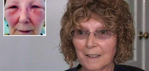 Woman's bogus Botox jabs 'left her looking like Frankenstein' – but Fake Britain viewers have 'no sympathy' – The Sun