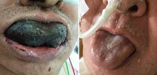 Man's tongue turned BLACK and blocked his airways – a sign of blood clotting disorder – The Sun
