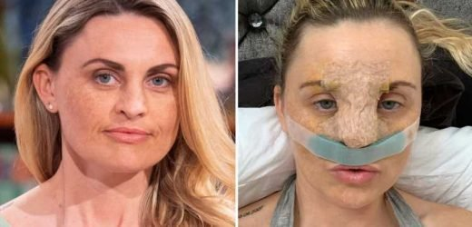 Britain's 'most hated woman' crowdfunding for £6k bum lift op after faking depression to get NHS nose job – The Sun