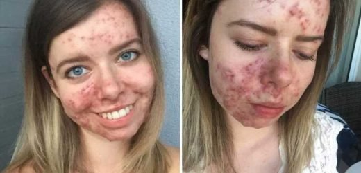 Woman who developed 'catastrophic' acne after quitting the contraceptive pill goes make-up free to help other sufferers – The Sun