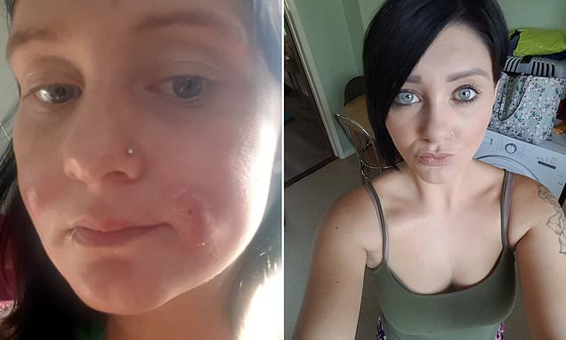 Mother ends up in A&E with pus-filled abscesses after injecting filler