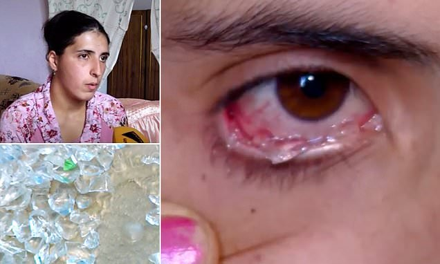 Woman is in agony after she started to cry CRYSTAL TEARS