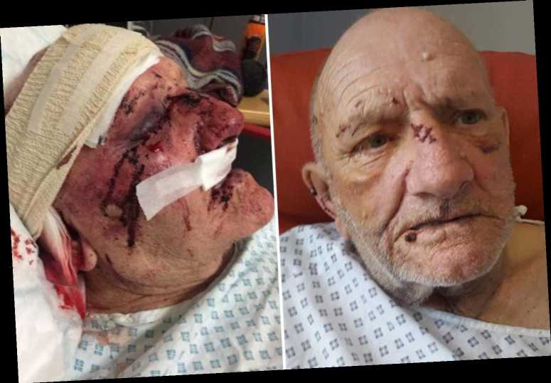 Family's fury as attacker who bludgeoned dementia sufferer with hammer is allowed out of psychiatric hospital
