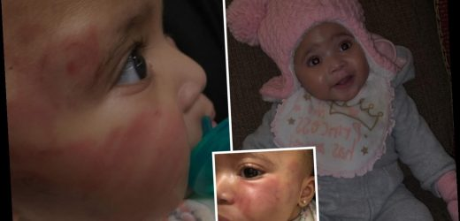 Daycare is shut down after baby girl found 'covered in bruises and bite marks' – The Sun