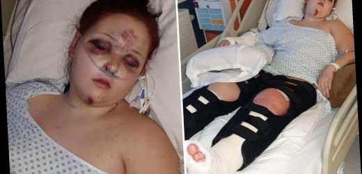 Girl, 15, breaks both legs and arm after being thrown through the air during high speed police chase – The Sun