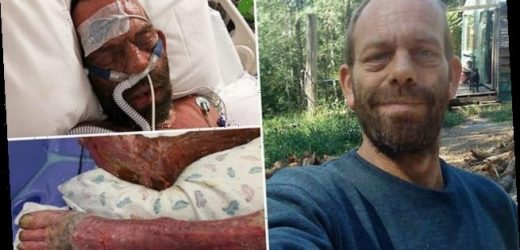 Incredible story of bushfire survivor who jumped into molten aluminium