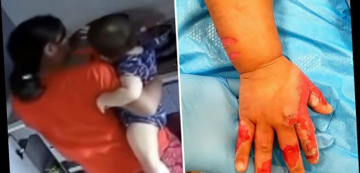 Evil maid burned toddler's arm with boiling water causing horror injuries 'because she wanted to go home'
