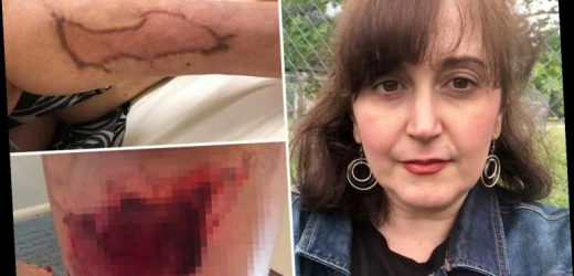 Nurse left with gaping hole in her leg after 'botched' lipsuction rotted her skin – The Sun