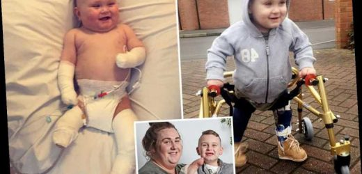 Boy, 4, has lost his legs and fingers and had to endure 84 operations after catching meningitis – The Sun