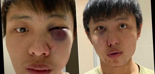 Asian man reportedly attacked in London by racist angry about coronavirus