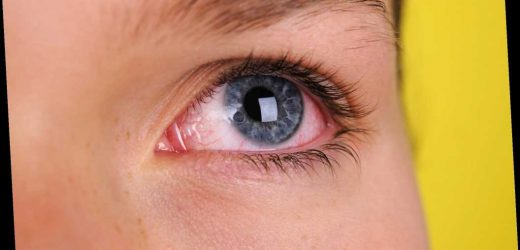 Coronavirus can enter the body through your EYES, scientists warn – The Sun