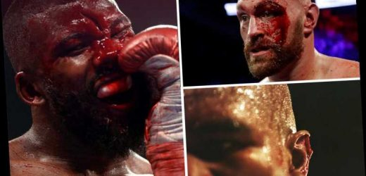 Seven most gruesome cuts in boxing history from Badou Jack's 'axe wound' to Mike Tyson chomping Holyfield's ear off – The Sun