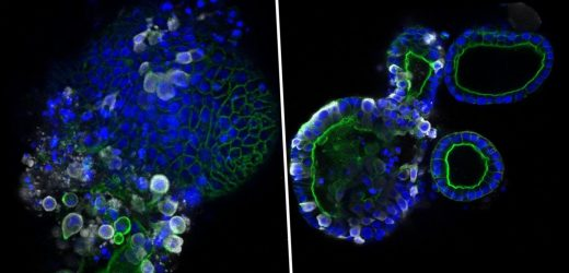 First detailed images of coronavirus released – showing bug multiplying in the gut – The Sun