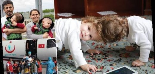 Parents of conjoined twins speak of delight following operation