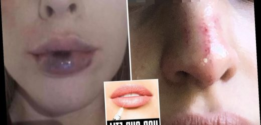Botched lockdown Botox and filler left us bloody, bruised and battered – The Sun