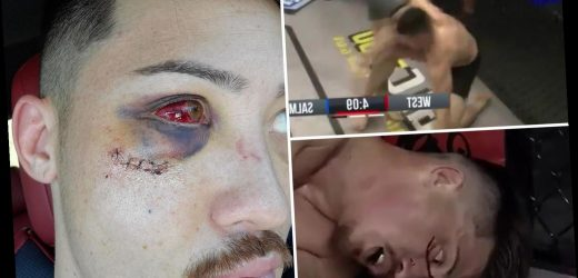 UFC star Boston Salmon shares horrific pic of blood-red eyeball, broken eye socket and cheek after illegal knee to face
