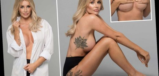Love Island's Laura Anderson admits disaster boob jobs have left her in pain, scarred and longing for a natural chest
