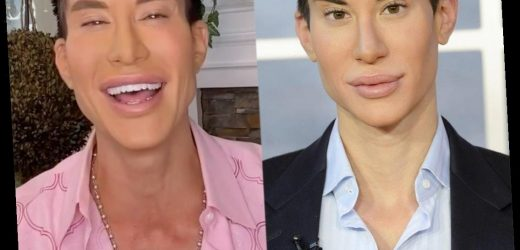 Human Ken Doll Is Back! Hear All About His 900+ Cosmetic Surgeries in Botched Sneak Peek