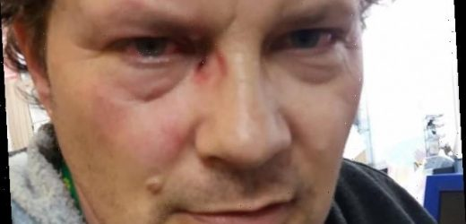 Shop worker tells of moment he was attacked with a KNUCKLE-DUSTER