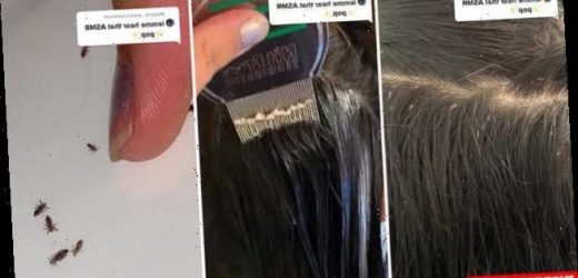 Therapist wows millions with video of herself popping HEAD LICE