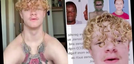 Man without collarbones claps his shoulders together on TikTok
