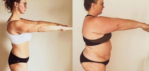 Chanelle Hayes shows off incredible 7st weight loss after surgery and quitting 'years of junk food' obsession