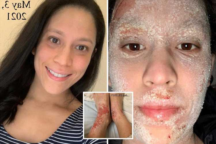 I had to quit my job after ditching eczema steroids – my sheets were covered with blood & showers made me cry with pain