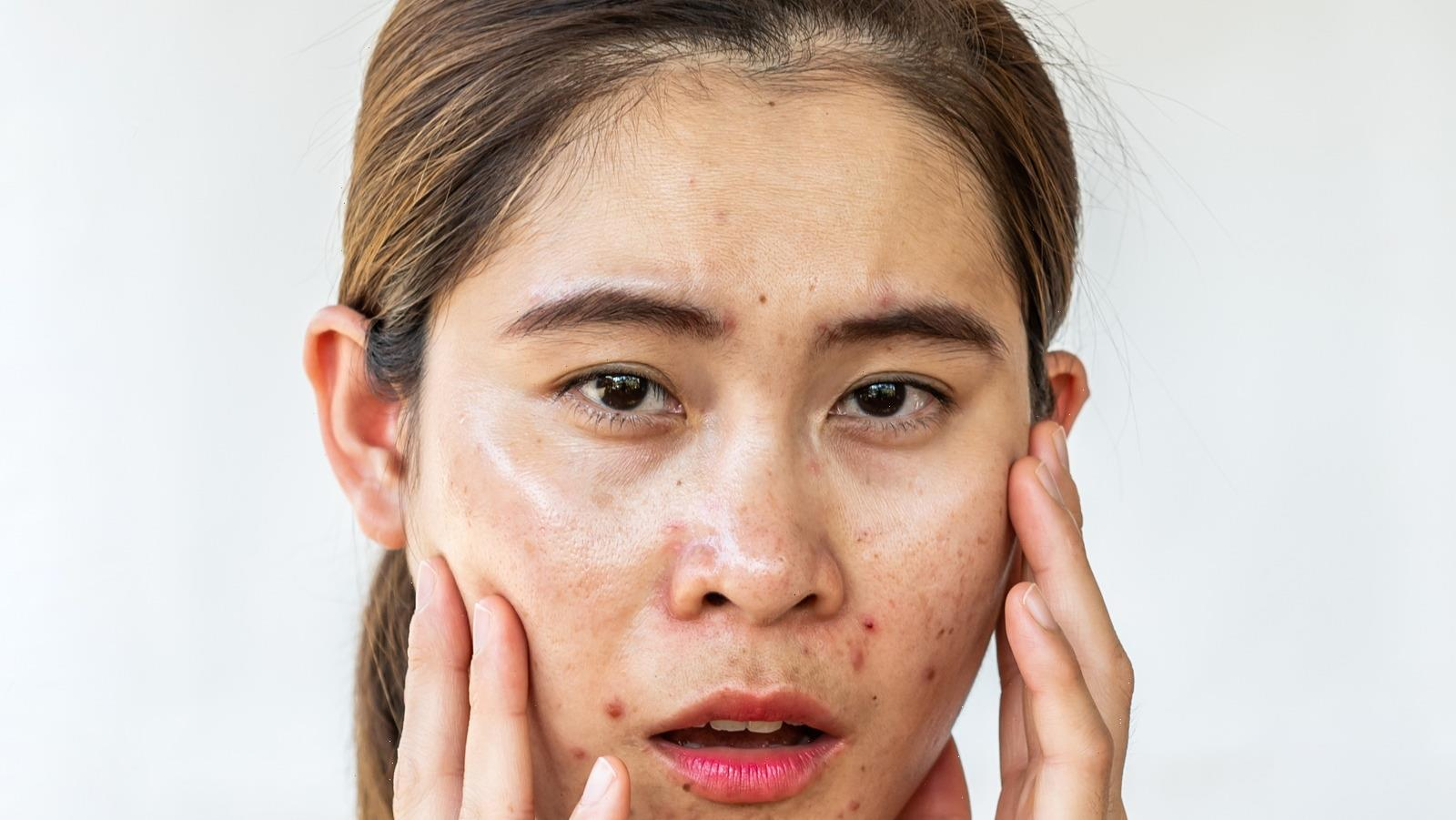 How To Actually Get Rid Of Sebaceous Filaments
