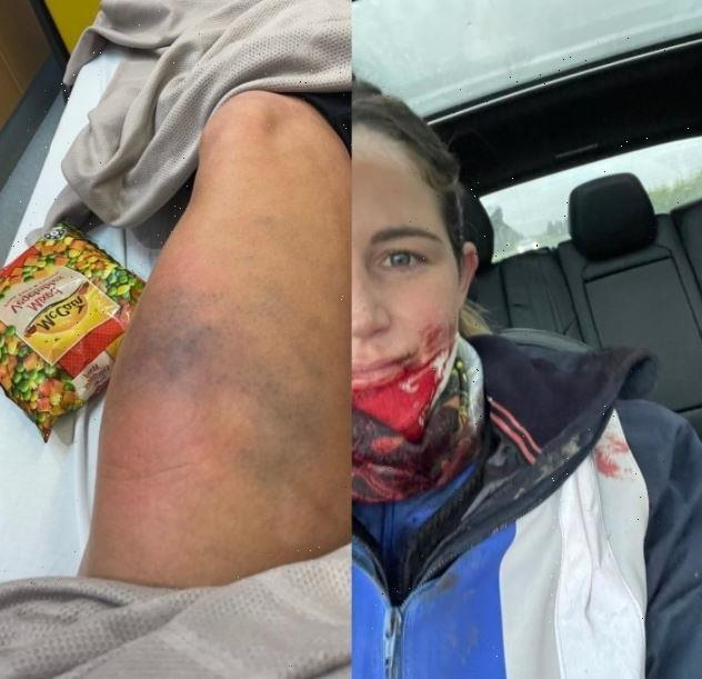 Jockey Michelle Payne reveals shocking injuries including leg 'twice its size' after being kicked in face by horse