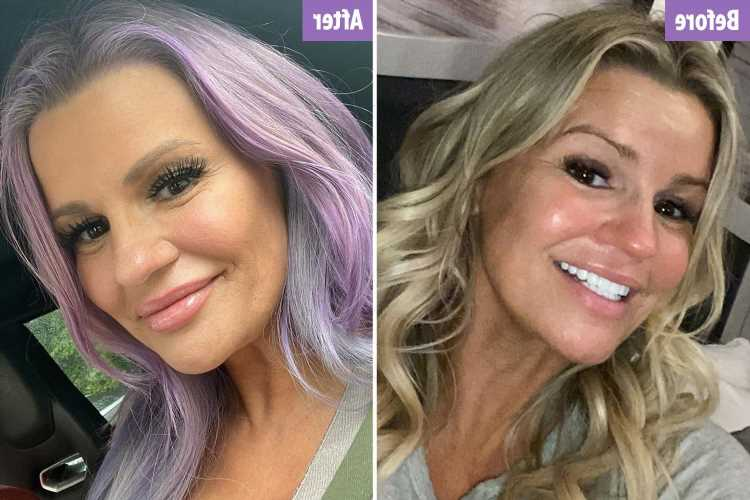 Kerry Katona gets a face lift and dyes her hair PURPLE weeks before her 41st birthday