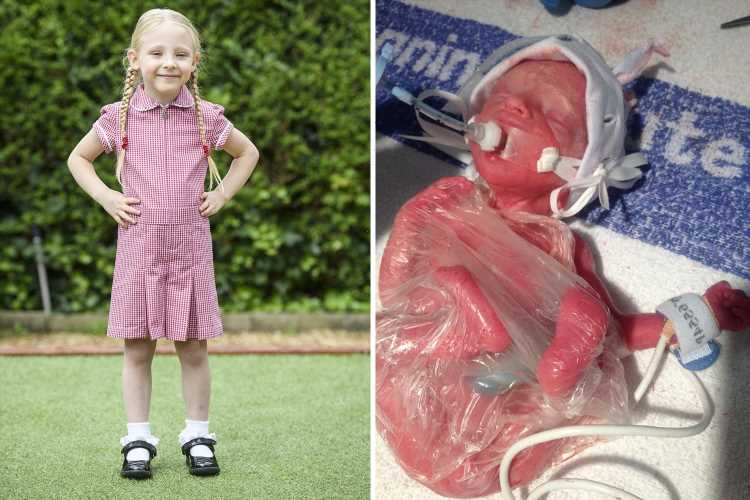 Baby born 3 months early, weighing 1lb & saved by plastic bag finally starts school – & the difference is extraordinary