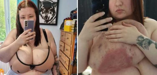 My giant 38P boobs cause cysts, sores and rashes but NHS has refused life-changing op